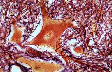 Нейрон спинного мозга